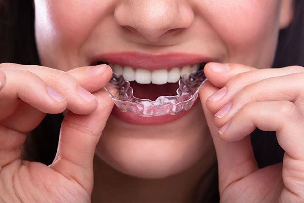 Foods to avoid with Invisalign.