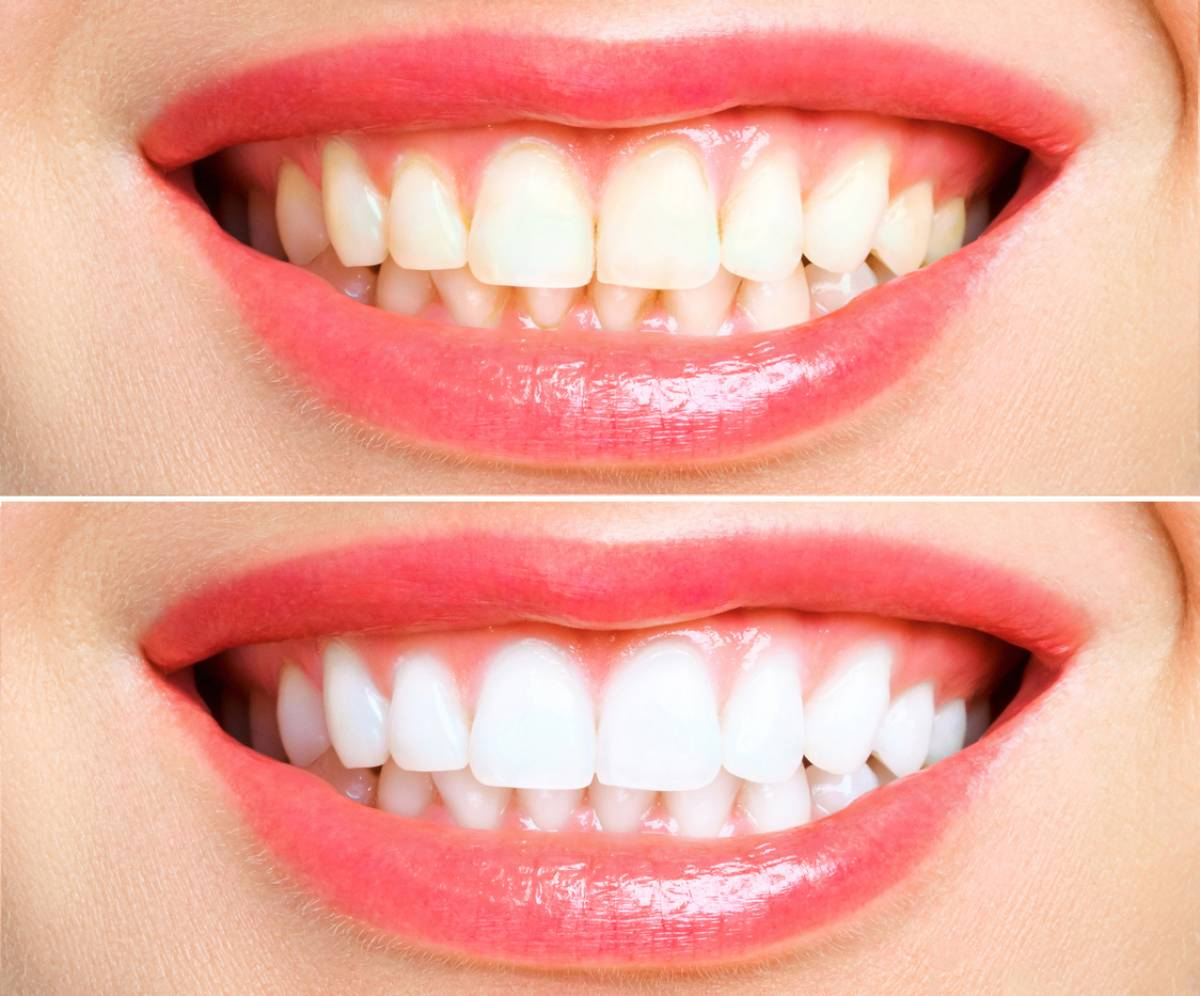 woman's smile, before and after teeth whitening treatment, teeth after treatment noticeably whiter